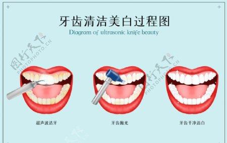 牙齿美白清洁过程效果背景素材图片